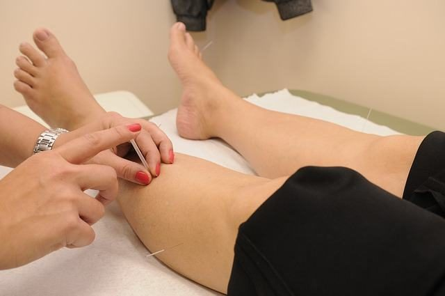 Acupuncture for Anxiety and for Managing Stress